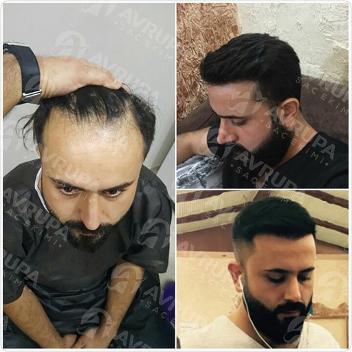 Avrupa Saç Ekimi