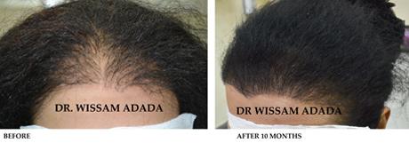Dr Wissam Adada