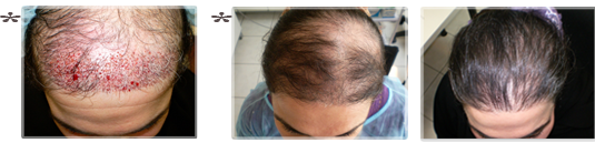 ALBORJ Hair Clinic.